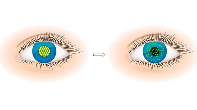 how to use eye drops with contact lenses