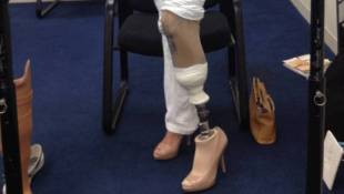 After Losing A Leg, Woman Walks On Her Own — In 4-Inch Heels