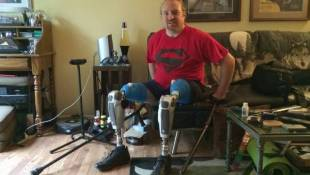 Friends Pitch In For Indy Man's High-Tech Legs