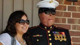 Severely Burned Marine Finds Strength In Nascent Marriage